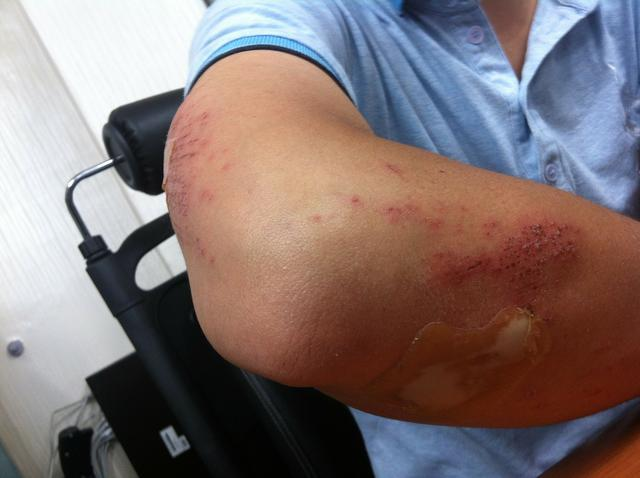 road-rash-injury-199025_1280.jpg